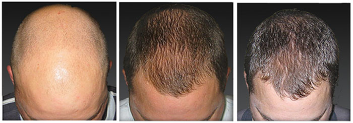 laser-hair-loss-treatment-01