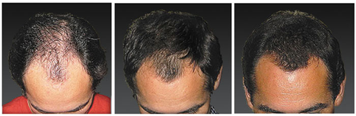 laser-hair-loss-treatment-02